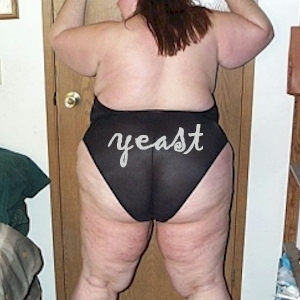 back of fat woman with vaginal yeast